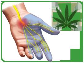Medical Marijuana and Arthritis
