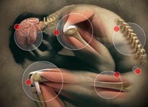 pain site 2